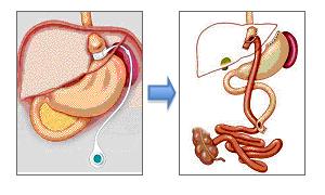 Cirugía de revision: paso de banda gástrica a bypass gástrico