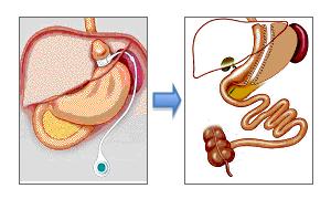 Cirugia revisión: paso de banda gástrica a tubo gástrico