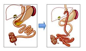 Cirugia de revision: paso de tubo gástrico a bypass gástrico