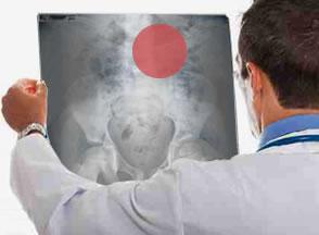 Cirugía de revisión