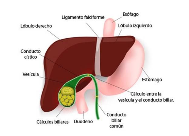 Cálulos en la vesícula