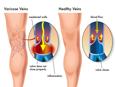 prevenir y tratar las varices