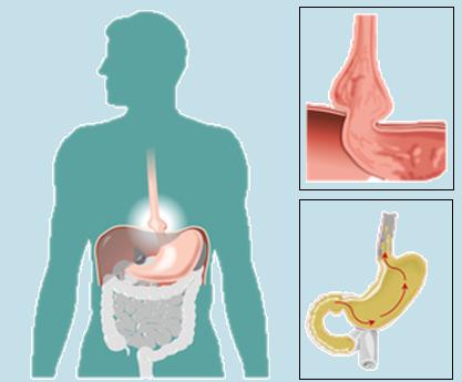 Hernia de Hiato • Clínica Obésitas